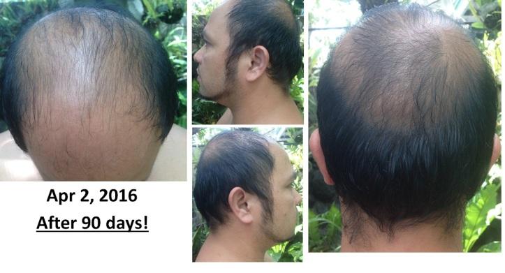 organic natural hairgrower